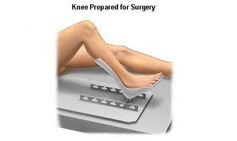 Chirurgia del ginocchio sostituzione After Care