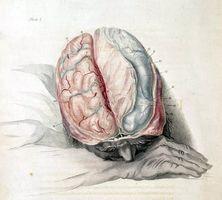 Sopratentoriale periventricolare Bianco malattia della materia