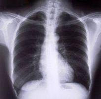 Trattamenti omeopatici per il cancro del polmone