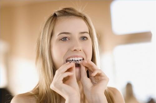 Come ottenere vassoi sbiancamento dentale