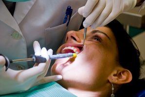 Malattia parodontale Moderato