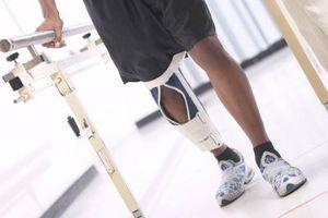Knee Surgery costo di sostituzione
