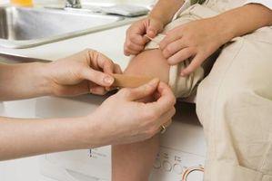 Come sapere se un taglio o ferita Needs Stitches