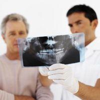 Come una estrazione dente del giudizio influisce altri denti