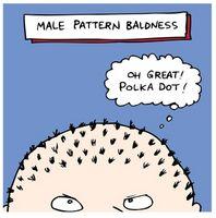 Perdita di capelli ereditaria Trattamento