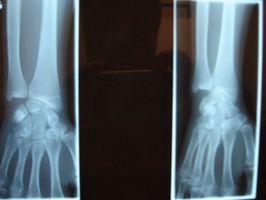 Come è Fatto Radiografia digitale?