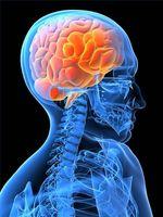 I sintomi chiuso trauma cranico