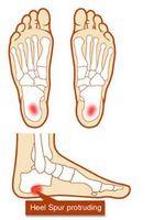 A proposito di fatti speroni ossei sui piedi