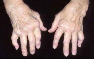 Come ridurre l'artrite