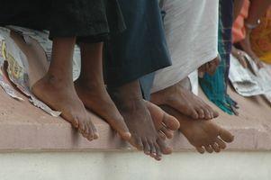 Come proteggere i punti di pressione nei piedi