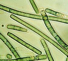 A proposito di alghe Fegato Cleansing