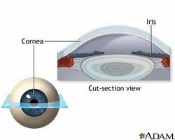 Quali sono i vantaggi di Lasik Eye Surgery?
