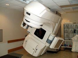 Effetti collaterali di radioterapia per cancro alla prostata