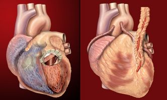 Ereditaria problemi cardiaci