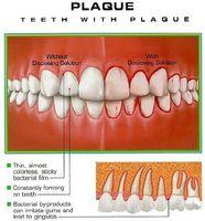 Come funziona placca influenzare i denti?