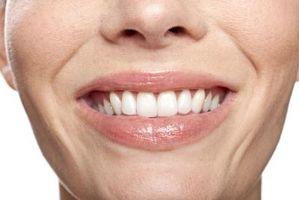 Come qualificarsi per i trattamenti dentali gratuiti