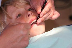 Perché Rope è nascosto intorno al dente Durante Corona Prep?