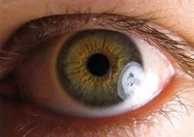 Problemi agli occhi causati da colite ulcerosa