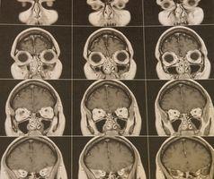 Differenze tra Acoustic Neuroma & Meningioma