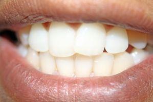 Preoccupazioni sbiancamento dentale