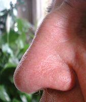 Come sbloccare il naso