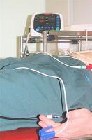 Quali sono le linee guida di pratica clinica per i trattamenti per ulcere da pressione?