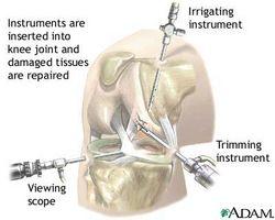 Procedure ginocchio artroscopiche