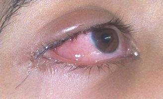Natura Allergia Cure