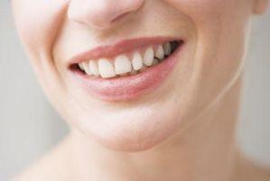Come sbiancare i denti a casa con il perossido