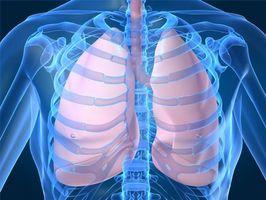 Chi Polmone Problemi con artrite reumatoide