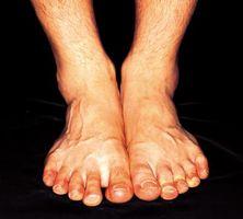 Quali sono le cause della pelle rossa su piedi e caviglie?