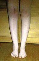 Sostituzione del ginocchio Chirurgia & Controllo del dolore