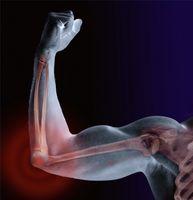 Come trattare la sclerosi multipla spasmo muscolare