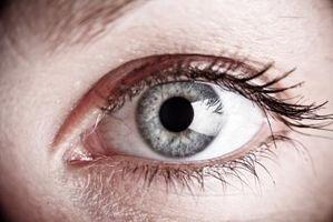 Quali sono le cause depositi di colesterolo intorno agli occhi?