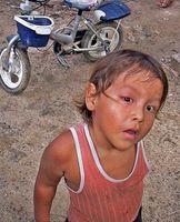 Malattie mitocondriali nei bambini
