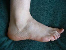 La maggior parte dei problemi comuni del piede