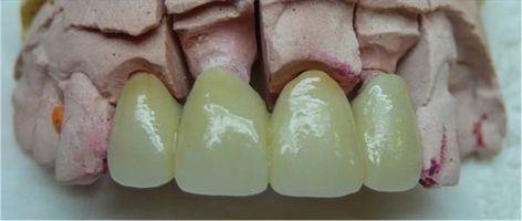 Come prendersi cura di un ponte dentale