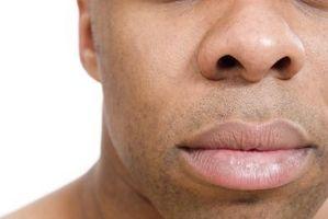 La causa di un naso a patata