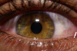Lesioni della cornea