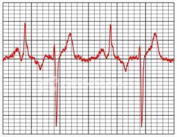 I test per i problemi di cuore