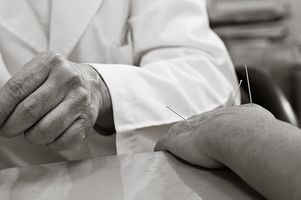 Che cosa è un agopuntore?