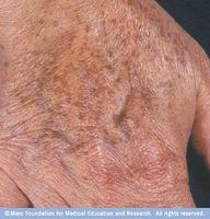 Metodo più semplice per rimuovere macchie di età per il viso