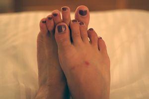 Malattia autoimmune della pelle