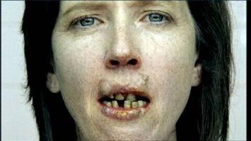 Circa l'effetto del fumo sulla bocca