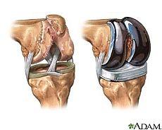 Qual è il tasso di successo complessivo per sostituzione del ginocchio chirurgia?