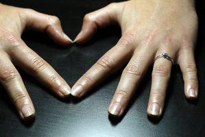 What Do Macchie bianche sulle unghie significano?