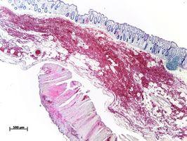 Malattia Occupazione e morbo di Crohn