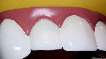 Come sbiancare i denti con perossido di idrogeno