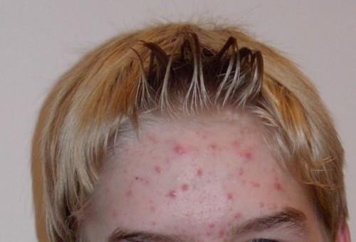 Approccio olistico per il trattamento dell'acne