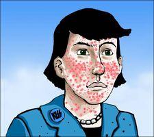 Vitamine che possono aiutare a curare l'acne
